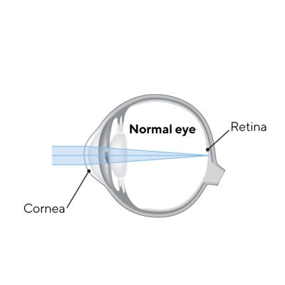 Three options for slowing the progression of myopia